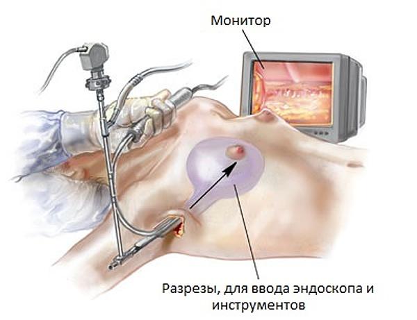 Маммопластика где лучше делать